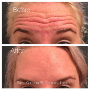 Elder Forehead Wrinkles Before and After - Injectables