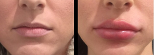 dermal lip filler injections gold coast including lip enhancement and lip augmenation