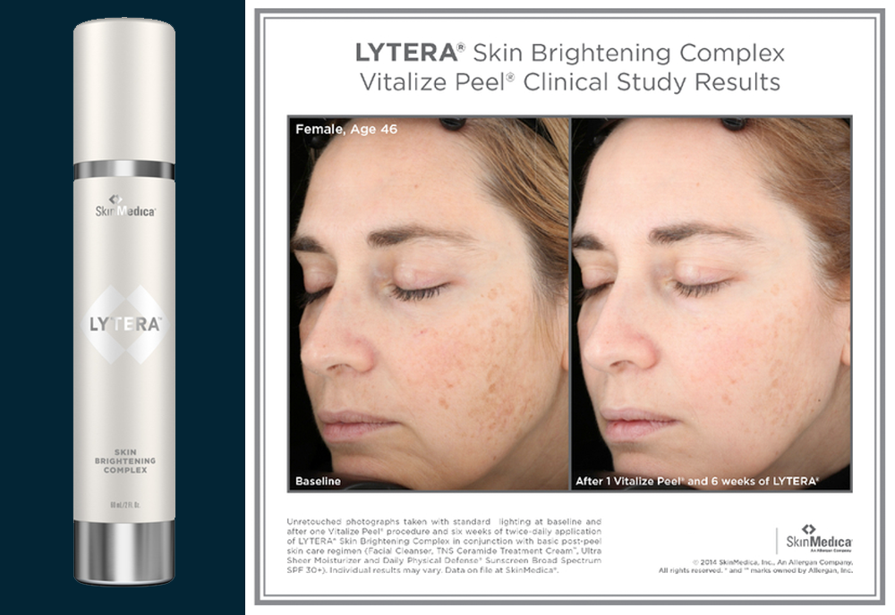 Lytera Skin Brightening - Injectables
