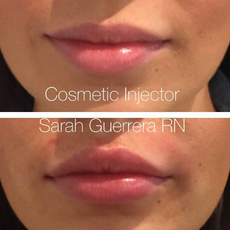 BEST Cosmetic Injectables Gold Coast - LOVE Your SKIN 💋07 5526 2331