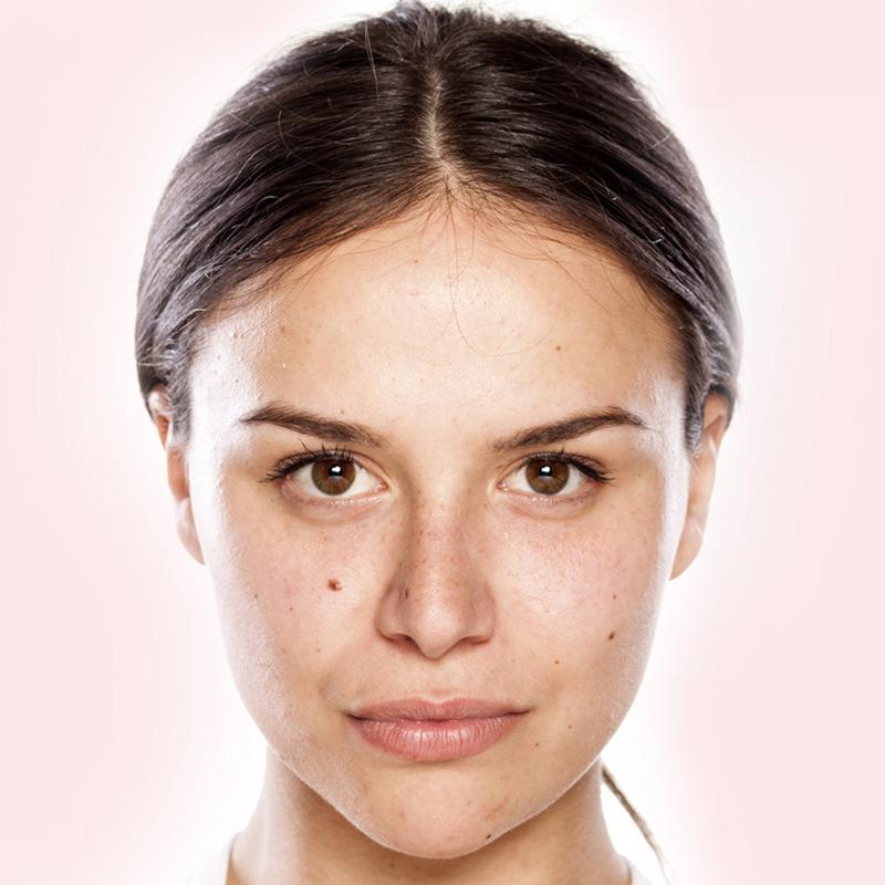 BEST Cosmetic Injectables Gold Coast - LOVE Your SKIN 💋07